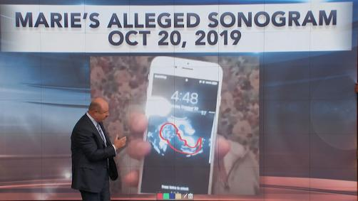 Dr. Phil pointing to ultrasound on large screen